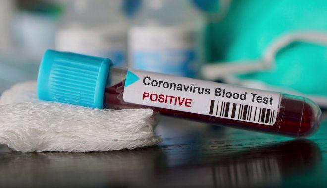 Coronavirus la Constanţa. 15.591 de persoane au fost confirmate cu COVID până în prezent - 1-1606414271.jpg