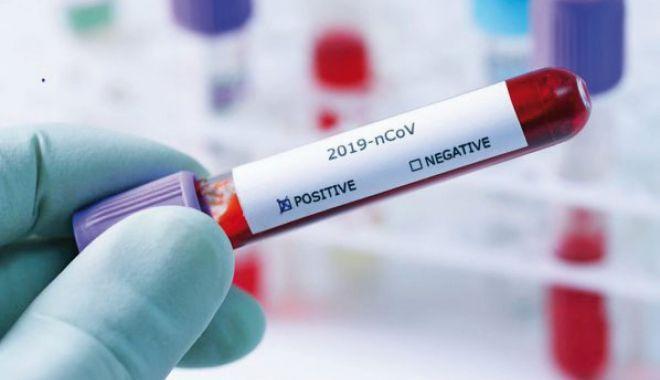 Coronavirus la Constanța. 17.231 de persoane au fost confirmate cu COVID până în prezent - 12pozatestcovidjos-1606761631.jpg