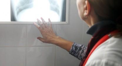 Foto: Cei care scuipă pe stradă vă pot îmbolnăvi de TBC