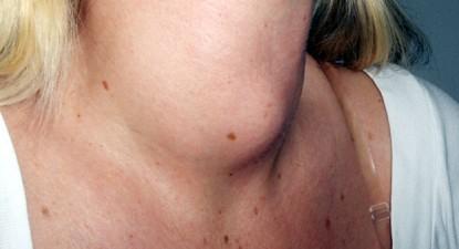 Foto: Cancerul tiroidian, o boală care afectează în special femeile