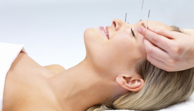 Foto: Acupunctura - remediul pentru  a scăpa de durere