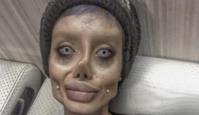 Fotografiile cu o tânără care spunea că și-a făcut 50 de operații estetice pentru a arăta ca Angelina Jolie sunt false - agfzad1jyju0owjhzdnmmtmzzjk5ote2-1512651654.jpg