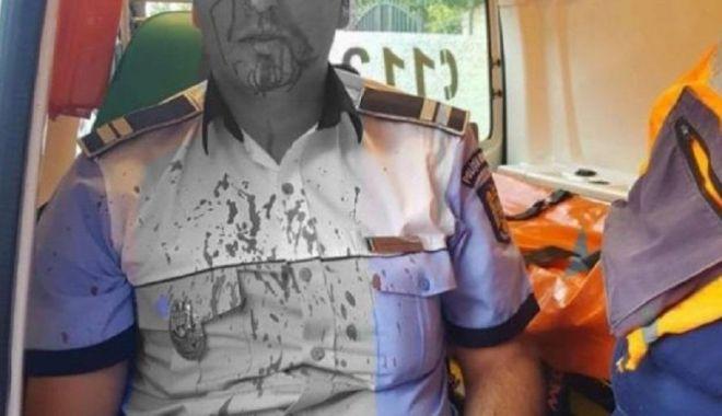 Foto: Un polițist a fost lovit în cap în timp ce încerca să imobilizeze un bărbat agresiv