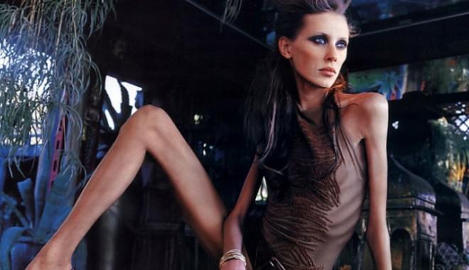 Foto: ȘOCANT! Managerii din lumea modei recrutează tinere anorexice internate în clinici