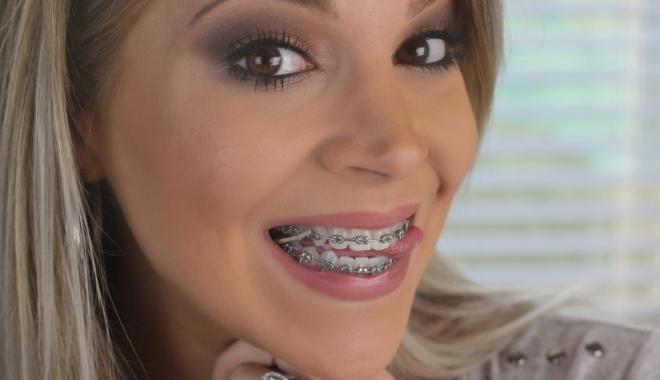 Foto: Aparatul dentar nu este doar pentru copii