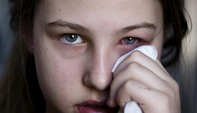 Foto: Măsuri de urgenţă  în cazul arsurilor oculare