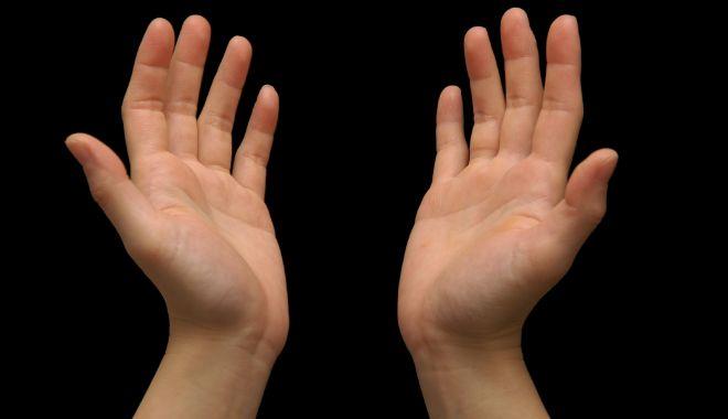 Foto: Aspectul mâinilor poate prevesti cancerul