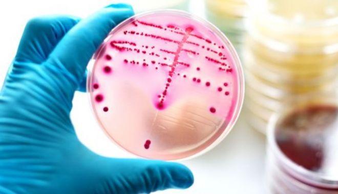 Foto: O superbacterie pentru care nu există tratament se răspândeşte tot mai mult !