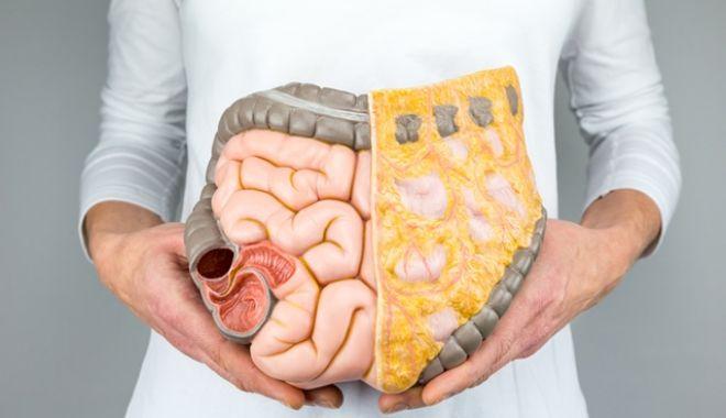 Cum se poate depista cel mai ușor cancerul de intestine