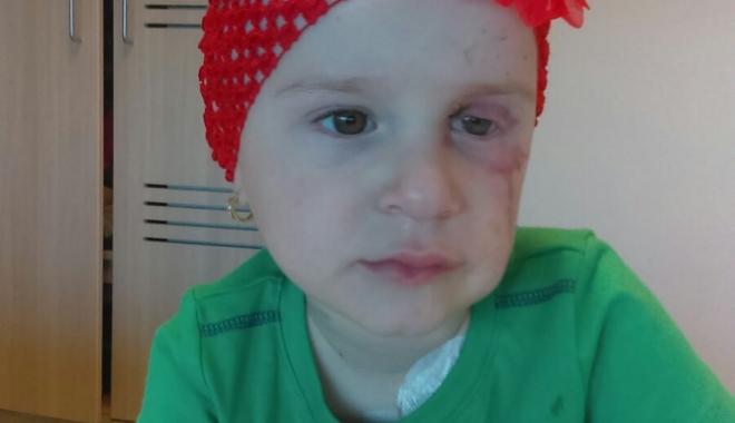 Foto: O fetiţă de trei ani se luptă cu cancerul la ochi. Haideţi s-o ajutăm!