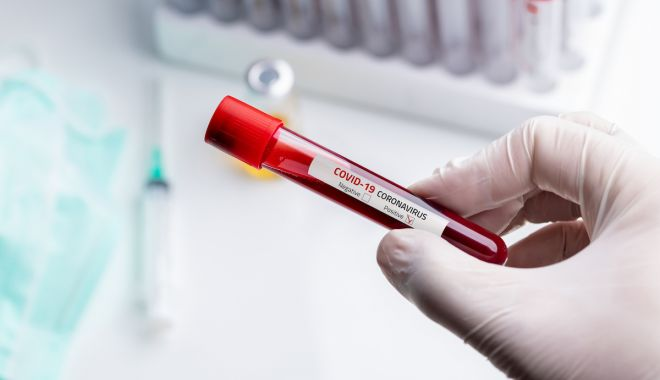 Coronavirus în România. Au fost înregistrate 8.134 cazuri noi de persoane infectate, 573 la Constanța - coronavirustestphotoyalcinsonatd-1606563111.jpg