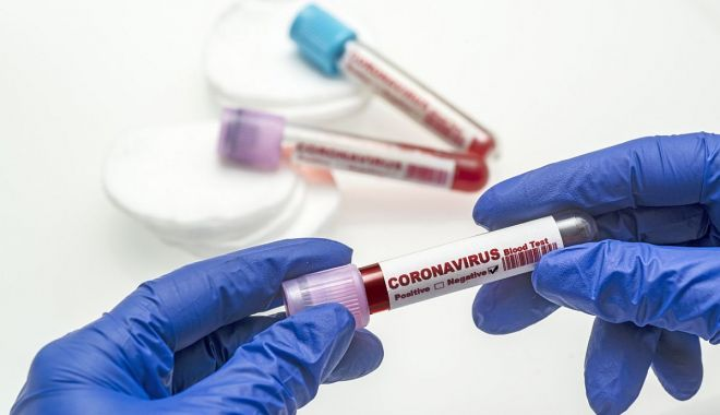 Coronavirus la Constanţa. 5.490 de persoane au fost confirmate până în prezent, 131 au decedat - covid3-1604077784.jpg