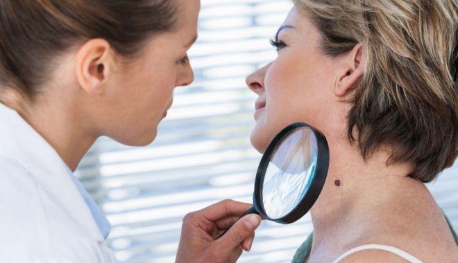 Dermatoscopia poate depista cancerul în timp util