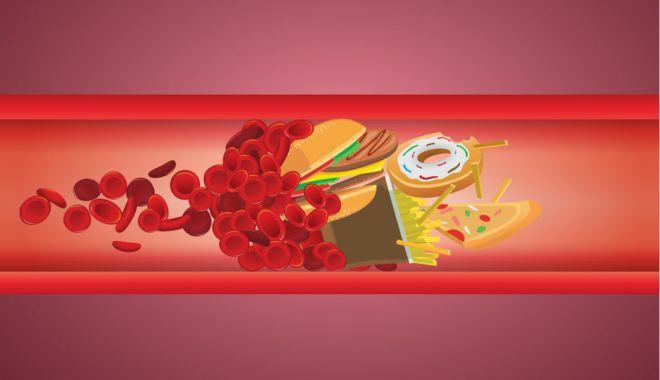 Foto: Colesterol ridicat, cale directă către afecțiuni cardio-vasculare