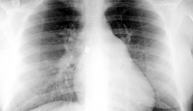 Chirurgia viitorului, acum și în România - f26large-1379331533.jpg