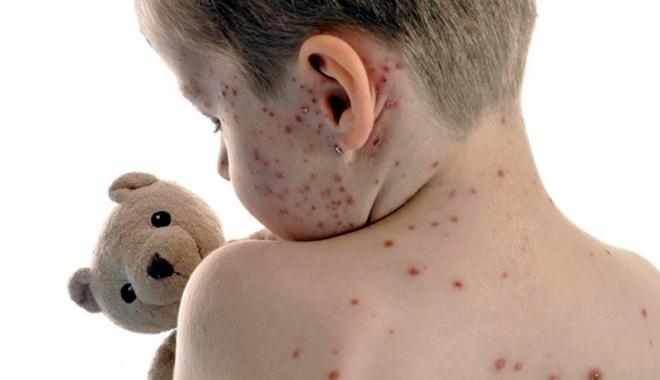 Focar de varicelă la Constanţa! Copiii de grădiniţă, cei mai expuşi