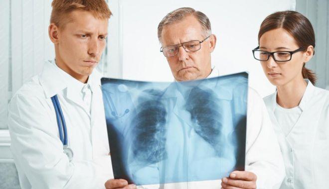 Numărul de îmbolnăviri cu TBC a scăzut semnificativ în județul Constanța - fondtbc-1615490989.jpg