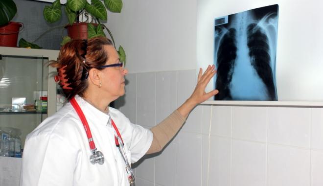 Foto: Fie că sunteţi asiguraţi, fie că nu, tratamentul pentru tuberculoză este gratuit