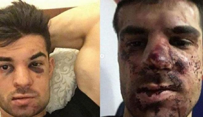 Foto: Un fotbalist a fost bătut cu bestialitate din cauza unui loc de parcare