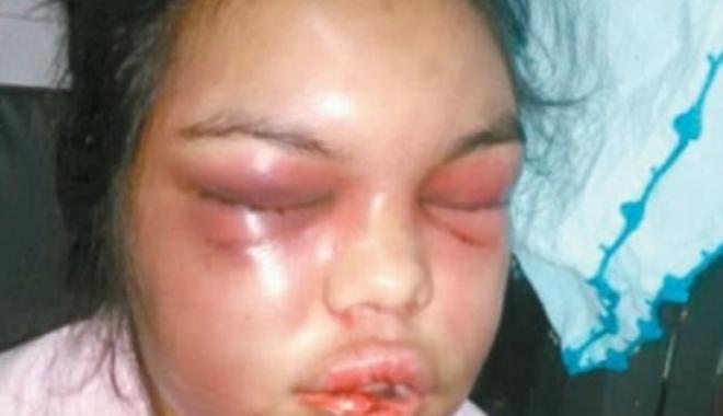 """Foto: BĂTUTĂ CRUNT de fiecare dată când PRIMEA UN """"LIKE"""" pe Facebook! Femeia a avut nevoie de operaţie pentru reconstrucţia feţei"""