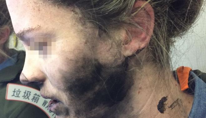 Foto: CLIPE DE GROAZĂ pentru o femeie. A fost arsă pe faţă după ce i-au explodat căştile, în timpul zborului