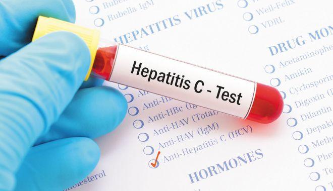 Aproximativ 89.000 de locuitori din zona Dobrogei s-au testat pentru infecțiile cu HIV sau hepatite virale - hepatitac-1627225307.jpg