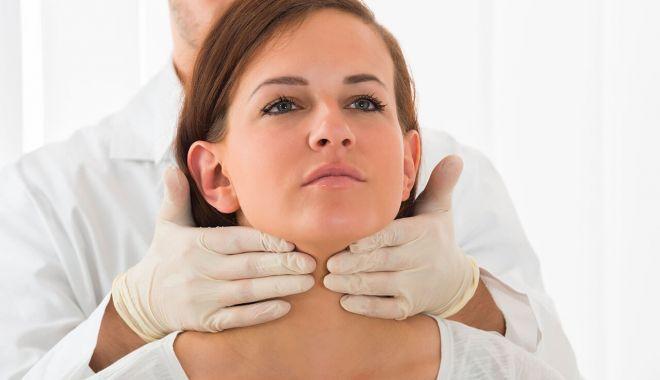 Foto: Hipertiroidism? Dieta este foarte importantă în prevenția bolii