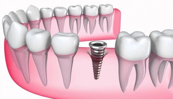 Paşi esențiali pentru un implant dentar de succes - implantdentarieftin-1516865642.jpg