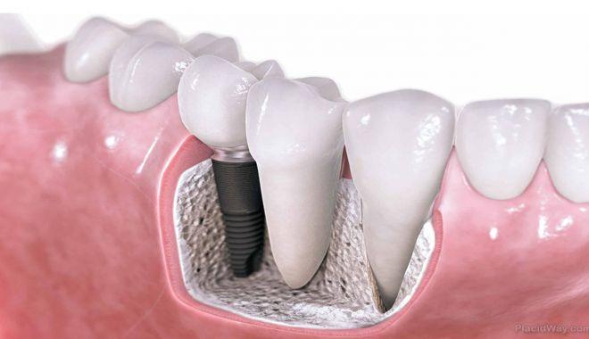 Părerile pacienților despre diverse tipuri de implant dentar: preț, durată, aspect - implantdentarpret-1630568057.jpg