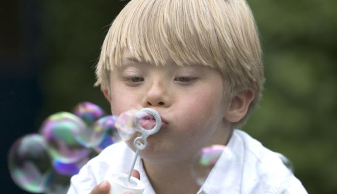 Foto: Însoţitor pentru copiii diagnosticaţi cu sindromul Down