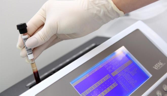 Foto: Sânge artificial creat de cercetători clujeni. Rezultate încurajatoare!