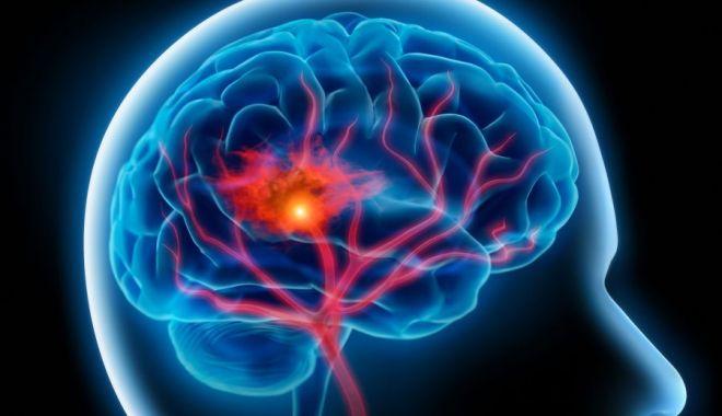 Leziunile cerebrale de la fotbal sunt mai frecvent întâlnite la femei