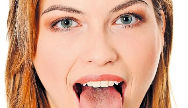 Foto: Tu cum ai limba? Ce boli poate indica aspectul acestui organ