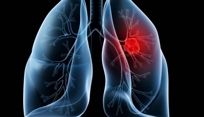 Foto: S-a descoperit alimentul ce ucide 85% din celulele cancerului pulmonar