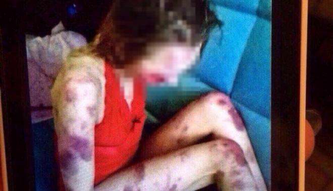 Foto: CAZ ŞOCANT! Şi-a UCIS soţia în bătaie şi se lăuda pe reţelele de socializare cu imaginile cu ea bătută
