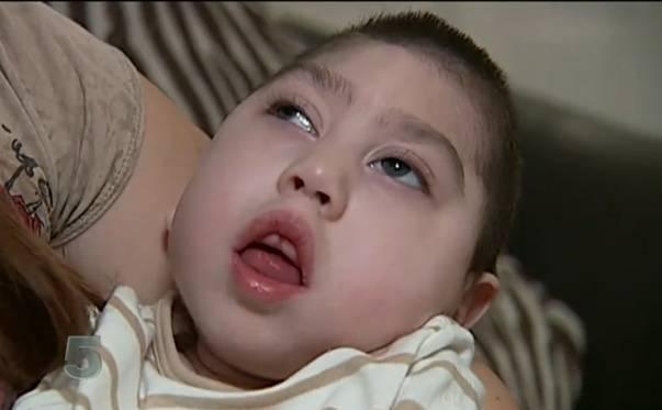 Foto: Copilul născut fără creier a murit la vârsta de trei ani, din cauza unui virus!