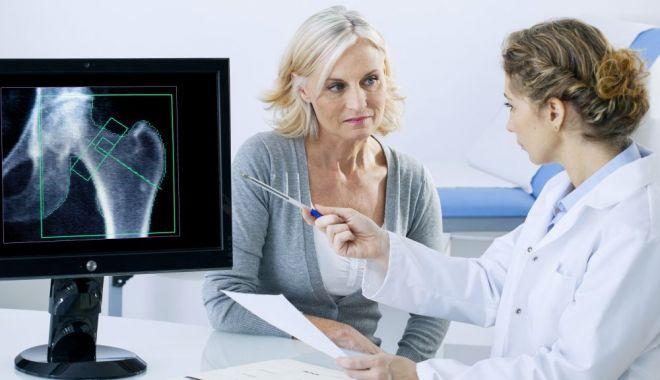Ce alimente pot preveni instalarea precoce a osteoporozei - osteoporoza-1624795996.jpg