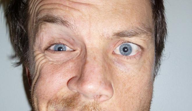 Fizioterapia şi guma de mestecat pot ajuta pacienţii diagnosticaţi cu paralizie facială