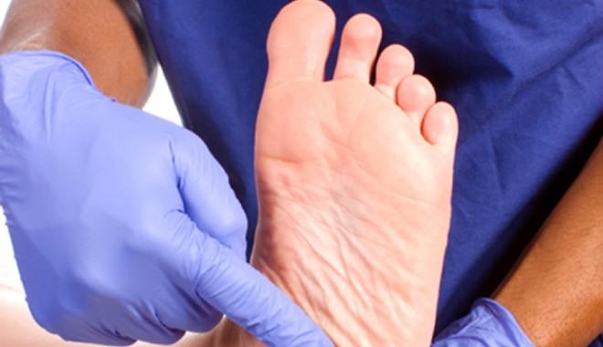 Cum să eviți amputarea piciorului atunci când ai diabet - piciordiabetic1346172424-1346193162.jpg