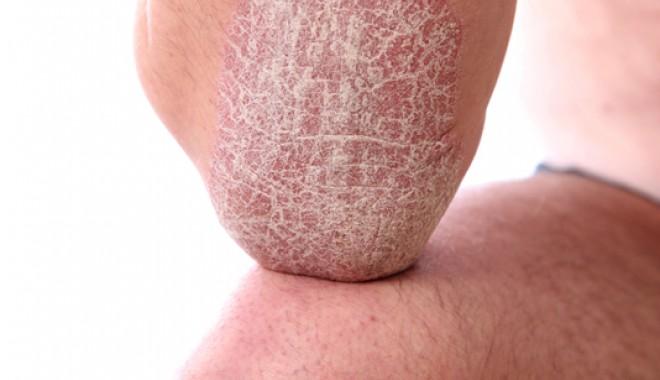dermatita seboreica la bebelusi y violeta