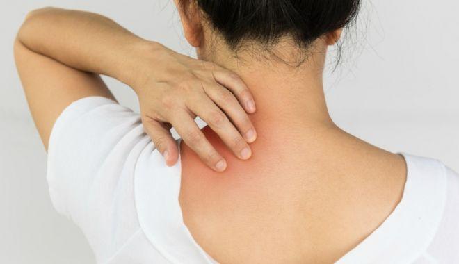 Foto: Cum ne afectează psoriazisul articulaţiile