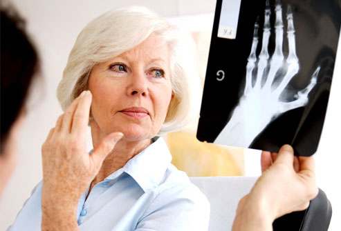 Bolile care macină oasele - rheumatoidarthritis-1316725174.jpg