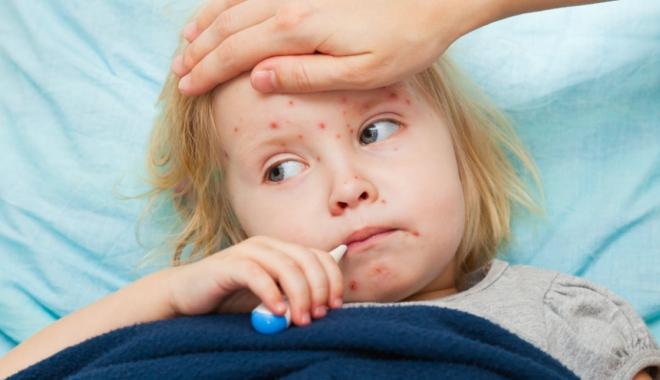 Epidemie de rujeolă: 700 de noi cazuri, raportate doar în ultima săptămână