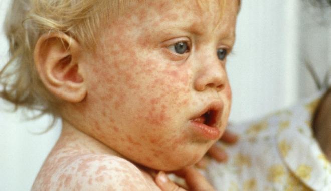 Foto: RUJEOLA CONTINUĂ SĂ FACĂ VICTIME. Un alt copil a pierdut lupta cu viaţa