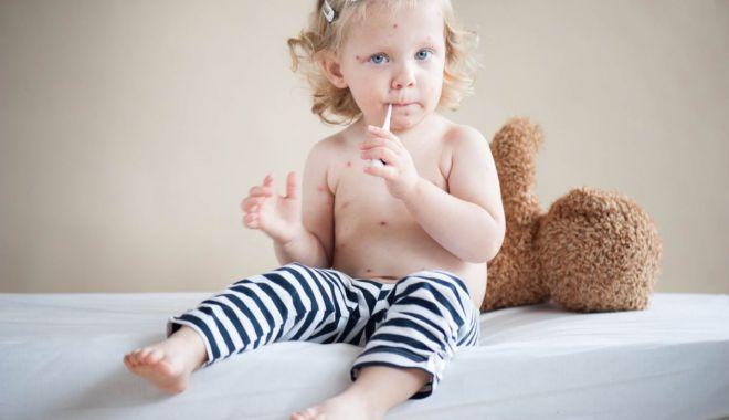 Foto: Părinţi, feriţi-vă copiii de rujeolă! Vaccinaţi-i!