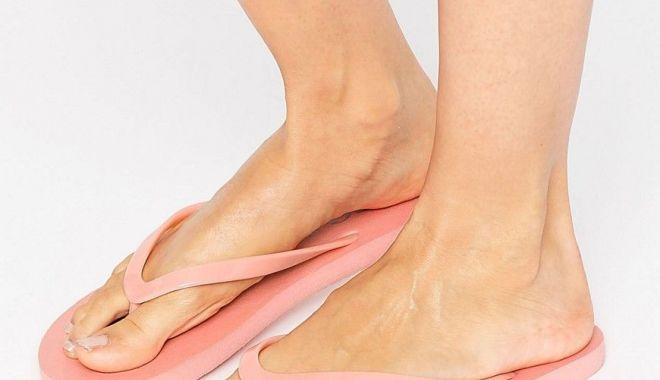 Foto: Șlapii pot duce la dureri mari de spate și picioare