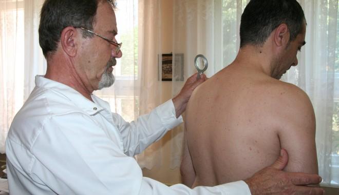 Foto: Campanie de informare asupra psoriazisului, la Constanţa