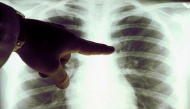 Foto: Profesoară diagnosticată cu TBC. Peste 150 de elevi, testaţi medical pentru tuberculoză