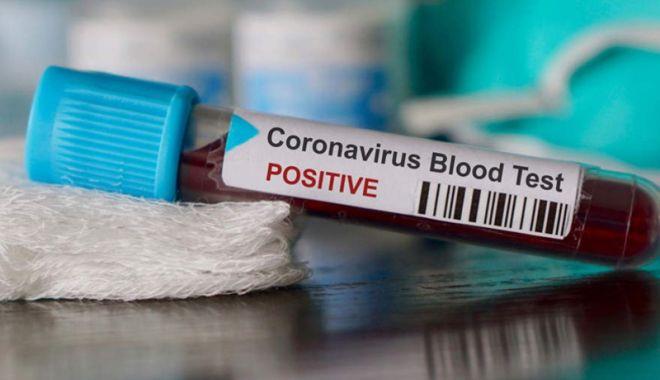 Foto: Coronavirus România: 187 de cazuri noi de coronavirus în ultimele 24 de ore