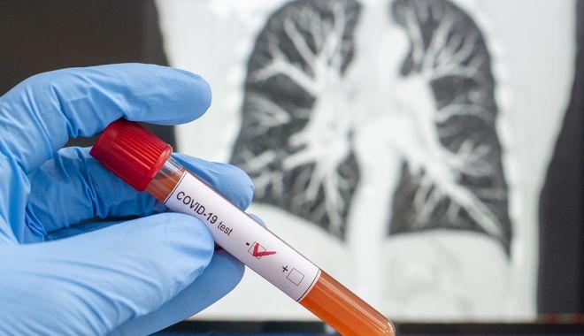 COVID-19. Peste 8.000 de cazuri noi, în 24 de ore - teste-1605613169.jpg